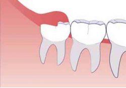удалять зуб мудрости