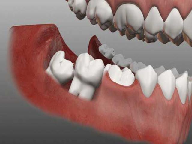 Фото на тему «Почему нельзя удалять зуб мудрости?»